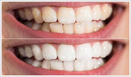 Ankara diş beyazlatma fiyatları