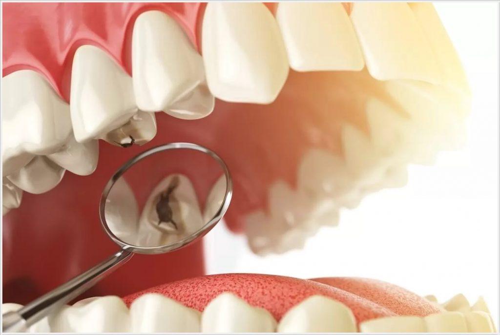 Diş Dolgusu Smile Design