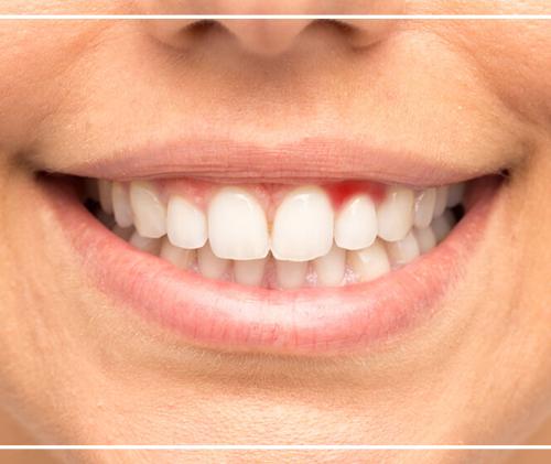 Diş Eti Tedavisi Bitkisel