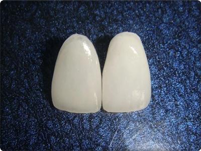 Porselen lamina